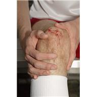 Раны, порезы, кровотечения